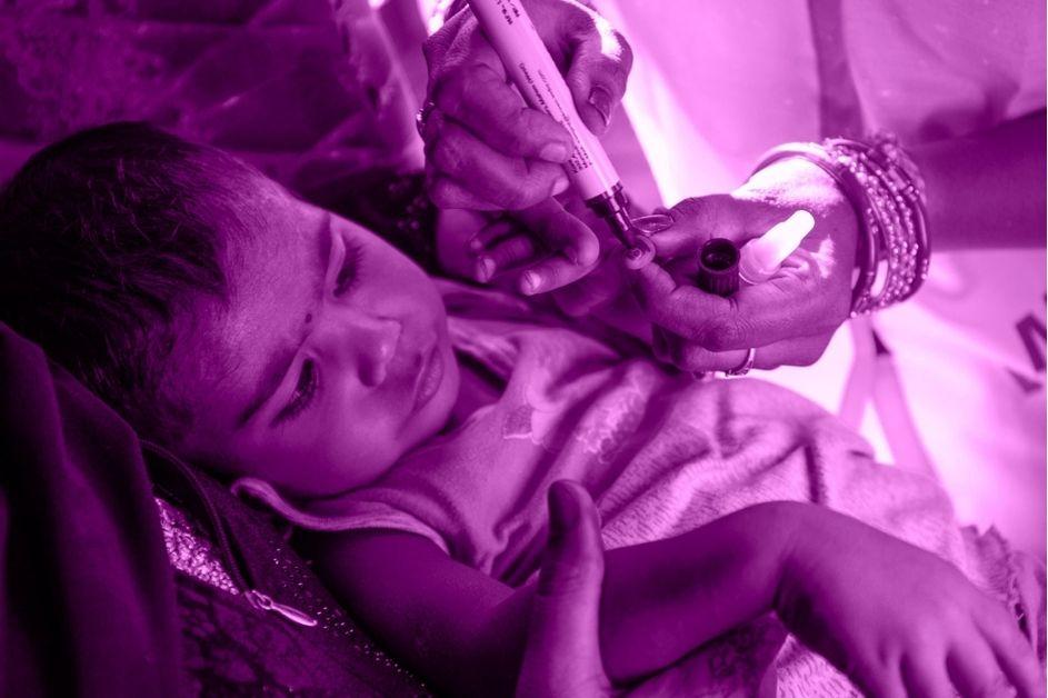 immagine bambino affetto da poliomelite